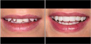 iperdent faccette denti