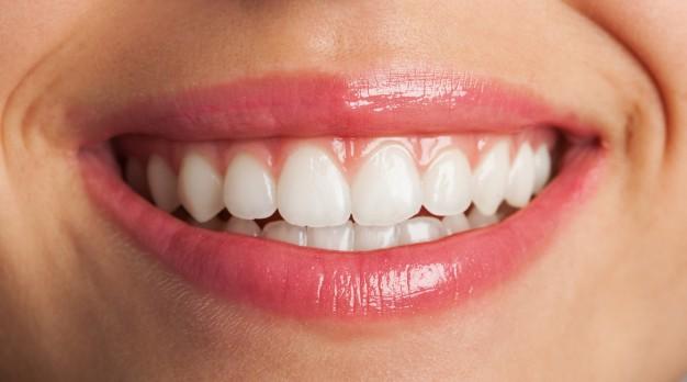 Estetica dentale: le faccette dentali