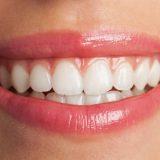 L'apparecchio c'è ma non si vede! Un trattamento ortodontico praticamente invisibile che raddrizza i denti e migliora il sorriso senza la necessità di adottare procedure dentali invasive o apparecchi metallici.